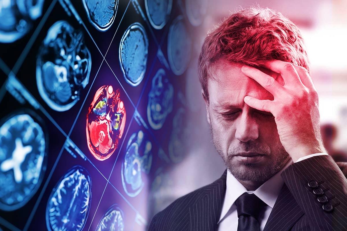 A man having a severe headache – a possible sign of stroke.