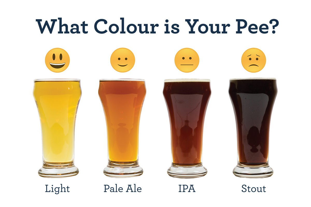 Comparison of your pee colour to beer type. Lager is healthy! Stout, see a doctor!
